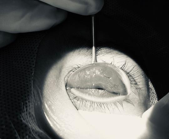 Mắt mờ dần sau nhấn mí ở tiệm spa, cô gái hoảng hốt khi bác sĩ tìm thấy nguyên nhân